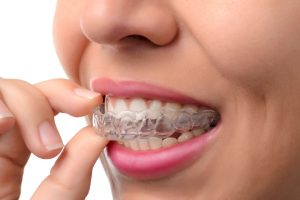 Advantages of Invisalign vs. metal braces